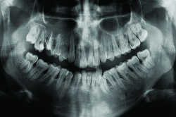Journal ls implantologie dentaire le cone beam en endodontie ls la lett - Definition de panoramique ...