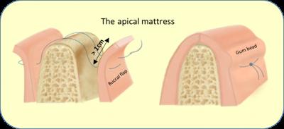 Journal Ls Implantologie Dentaire Reconstruction Verticale Et